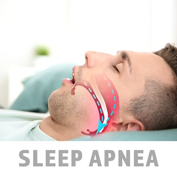 Image of a young man asleep with his mouth open and an animation of how his airway is blocked