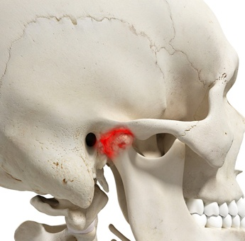 A digital image of a skeleton and the temporomandibular joint showing red for being inflamed