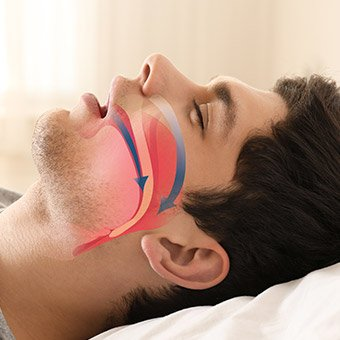 Sleeping man with airway animation on his profile
