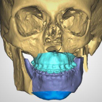 Animation of skull and mouth highlighted blue